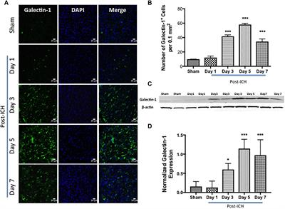 Frontiers | Differential Cellular Expression of Galectin-1 and
