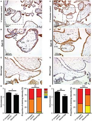Frontiers | Placental Galectins Are Key Players in