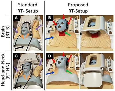 Frontiers | Brain and Head-and-Neck MRI in Immobilization
