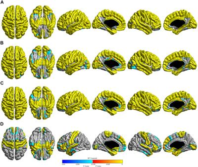 Distinctive Brain Pattern May Underlie >> Frontiers Distinct Brain Regions In Physiological And Pathological