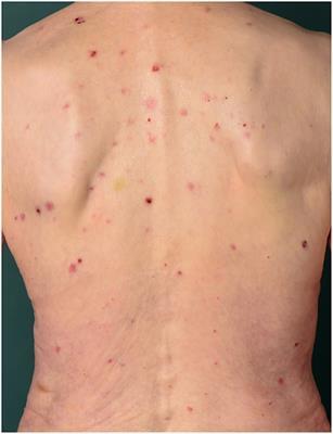 Frontiers   Pruritus in Autoimmune and Inflammatory