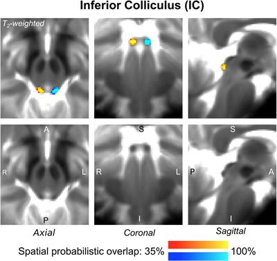 Frontiers | In vivo Probabilistic Structural Atlas of the