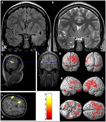 Frontiers in Neurology | Applied Neuroimaging